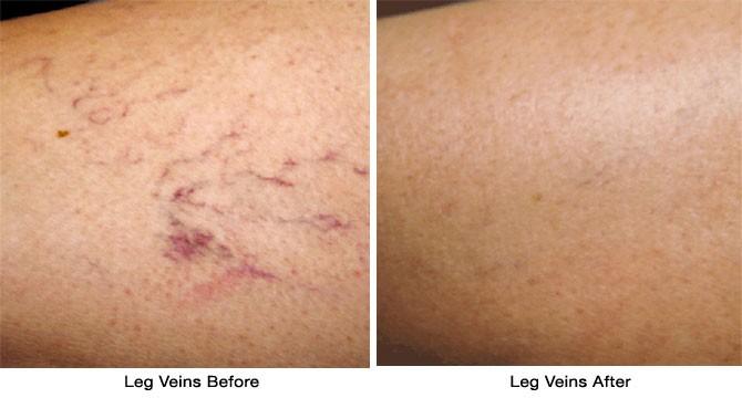 Vbeam Advanced Dermatology